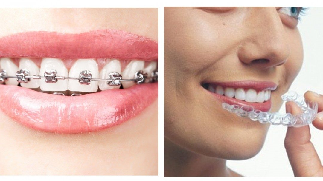 Perth Leading Dentist Reveals Top 10 Things You MUST Know About Invisalign